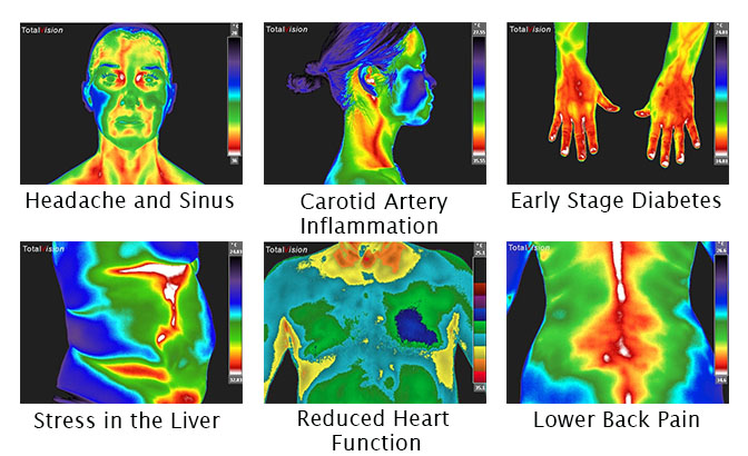 sample thermography images